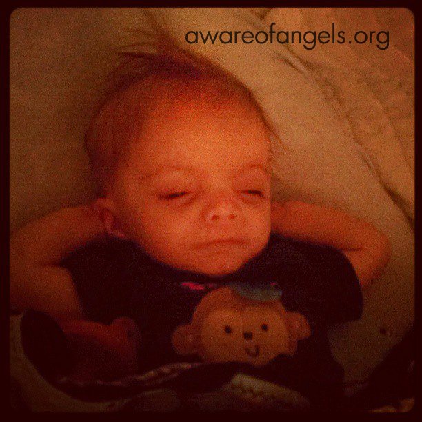 Taylor-12q14.1 Microdeletion Syndrome