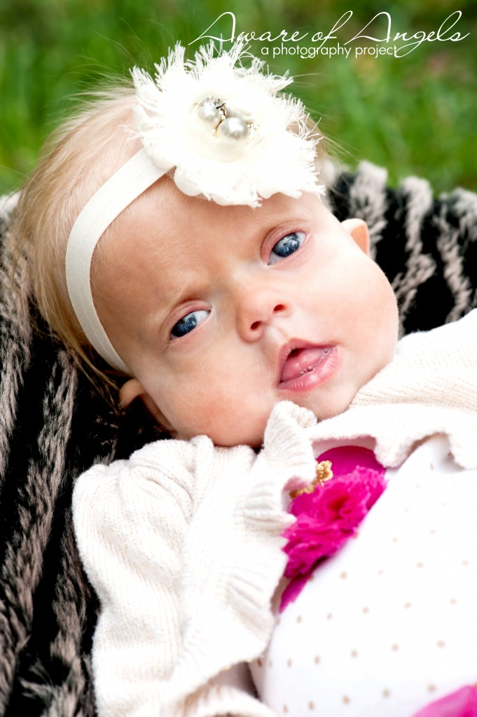 Avery-Schinzel-Giedion Syndrome