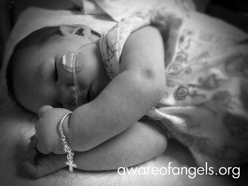 Carsyn Olivia-Undiagnosed