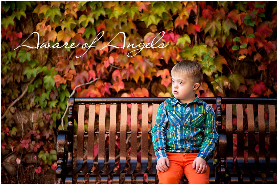 Jacob-Down Syndrome